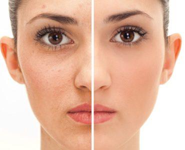 Выравнивание цвета лица